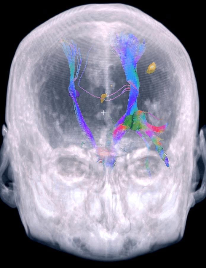 "fMRI®Learn more about ""Brain Mapping"""